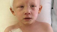 4 Yaşındaki Çocuk Kanserden Hayatını Kaybetmişti – Mucizevi Şekilde Gözlerini Açıp Şu 3 Kelimeyi Söyledi