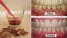 1 Malzemeyle Pırıl Pırıl Dişler