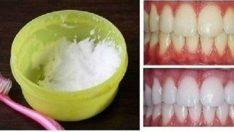 Evinizde  Doğal Yöntemler ile 2 Dakikada Beyaz Dişlere Kavuşun % 100 Sonuç