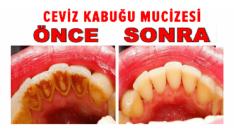 Dişleriniz İçin Artık Doktora Gitmeyeceksiniz! 1 Malzemeyle Işık Işıl Dişler