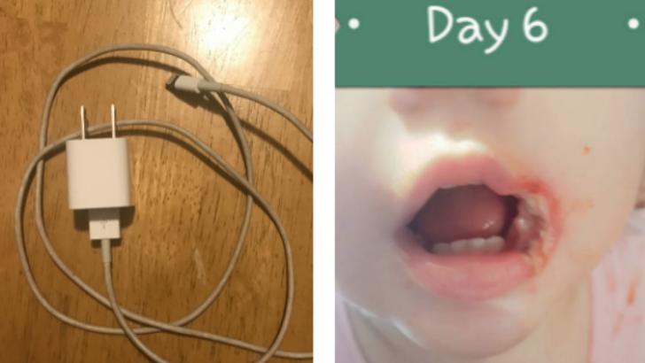 Bebeğinin Ağzı Bir Şarj Cihazının Ucundan Yanınca Herkesi Uyaran Anne