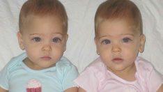 8 Yaşındaki Tek Yumurta İkizlerine Herkes Dünyanın En Güzel İkizleri Gözüyle Bakıyor.
