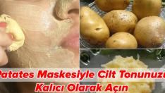 Patates Maskesi ile Cilt Tonunu Kalıcı Olarak Açma