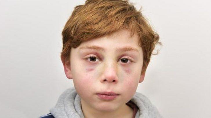 7 Yaşındaki Çocuklarını Öldürdüler – Doktor Çocuğun Elinde Bakın Nasıl Bir Not Buldu