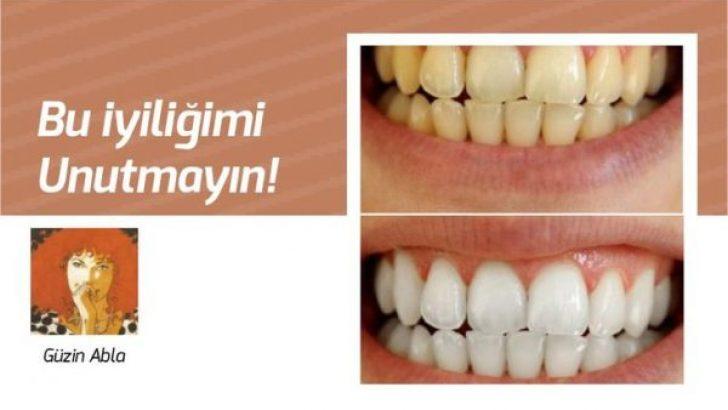 Dişlerinizi evinizde 2 dakikada beyazlatın. Bu iyiliğimi de sakın unutmayın…