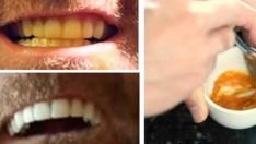 Bu Tarifle Sararmış Dişleriniz Bembeyaz Olacak