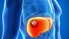 Karaciğer Kanseri Neden Olur ?