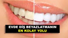 Sararmış dişleri kimyasal içermeden bembeyaz yapan doğal karışım