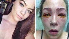 16 Yaşındaki Kız Güzelleşmek İçin Neredeyse kör Oluyordu Bu Ürünlerden Sizde de Varsa Kesinlikle Kullanmayın