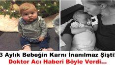 3 Aylık Bebeğin Karnı İnanılmaz Şişti – Doktor Acı Haberi Böyle Verdi