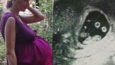 Hamile Kadına Dokunamıyorlardı – 3 Dakika Sonra Doğum Odasında Kutlama Başladı
