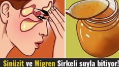 Sinüzit Ve Migren Sirkeli Suyla En Fazla 15 Günde Bitiyor