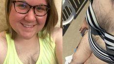 33 yaşındaki kadın vücudundaki kıllardan bıktı! Ve kimsenin yapmadığını yaptı…