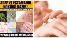 Sedef ve Egzamanın Tedavisi İçin Doğal Sedef ve Egzama Kremi..