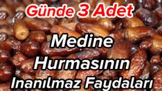 Günde 3 adet Medine hurmasının inanılmaz faydaları