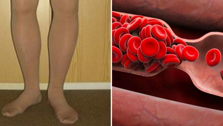 Vücudunuz bir kan pıhtısı oluştuğunda sizi uyarır: 8 işareti ihmal etmemelisiniz