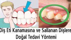 Diş Eti Kanamasına ve Sallanan Dişlere Doğal Tedavi Yöntemi