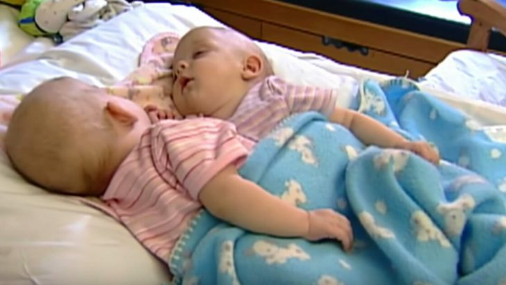 10 Yıl Önce 17 Cerrahın Yer Aldığı Operasyonla Birbirinden Ayrılan Yapışık İkizler Bakın Bugün Nasıl Görünüyorlar